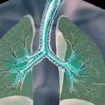 asthma-150x150